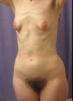 Behaarte keine Brüste